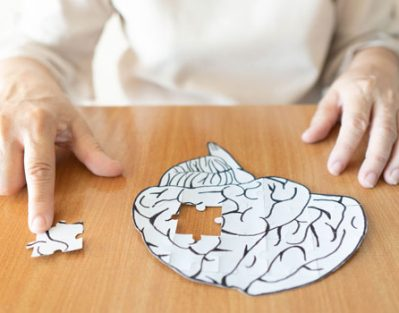Most Common Causes of Alzheimer's in 2019