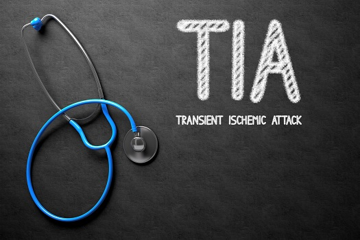 Facts about Transient Ischemic Attacks in Tampa Bay, FL
